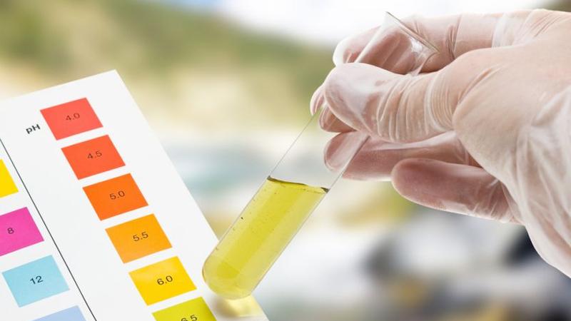 farmacia_cattaneo_servizi_analisi_delle_urine